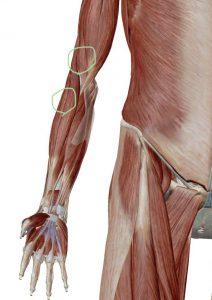 腱鞘炎 原因 筋膜